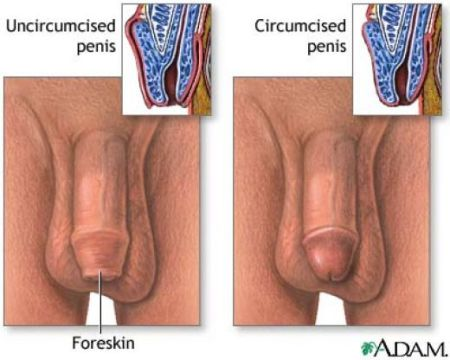 An uncircumcised penis (left) and a circumcised penis (right).